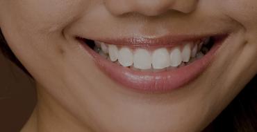 mini dental implants Springfield, MO